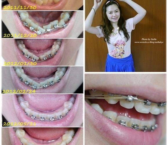 【牙套】邁向第11個月,可以露齒笑,調咬合中,離拆牙套日子不遠了!