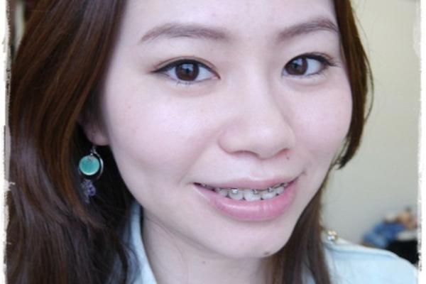 【牙套】戴了半年牙套,下排變整齊,上排也開始有牙套