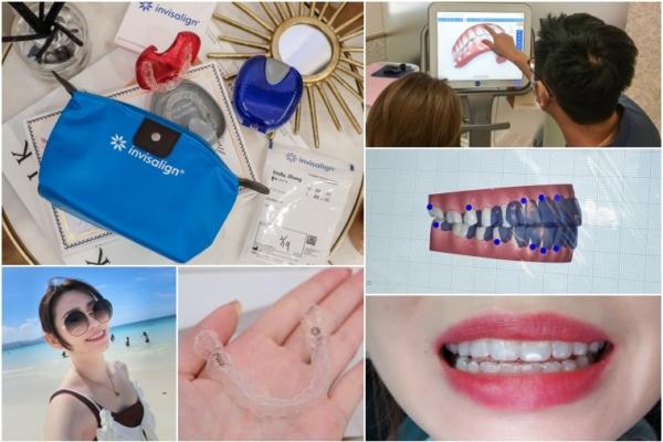 【隱形牙套矯正日記】為何要再次戴牙套?為何選擇隱適美Invisalign?